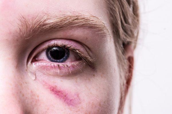 alergia oci vividrin