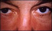 atopická keratokonjunktivitída (AKC)