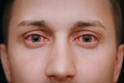 cervene oci alergia