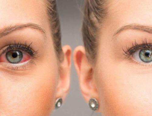 Alergény dráždiace očné spojivky